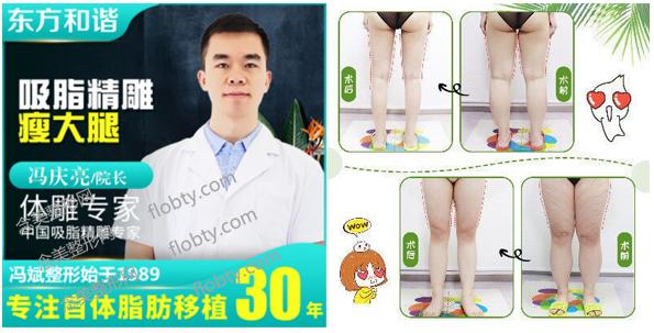 北京东方和谐冯庆亮医生大腿吸脂案例