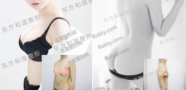 北京东方和谐冯斌自体脂肪丰胸和自体脂肪丰臀案例效果图