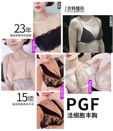 北京京韩王沛森做自体脂肪丰胸案例