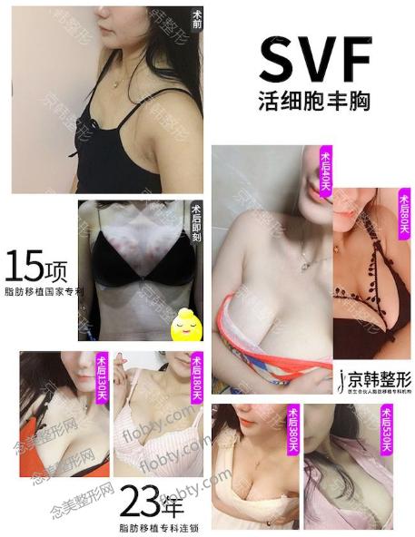 北京京韩王沛森做的脂肪胶丰胸案例