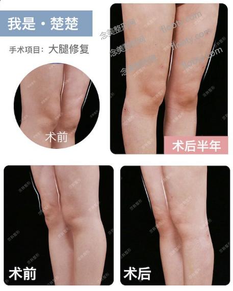 北京京韩王沛森大腿吸脂失败修复案例