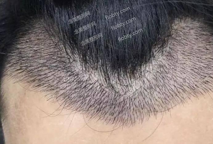 植发适合哪些人?植发方式有哪几种?
