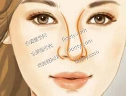 歪鼻修复有哪些方式?造成歪鼻的原因有哪些?