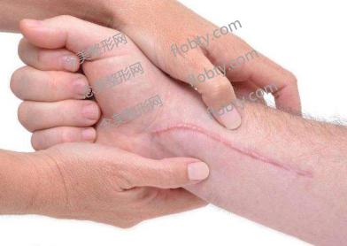 疤痕有哪些类型?有效消除它的方法有哪些?