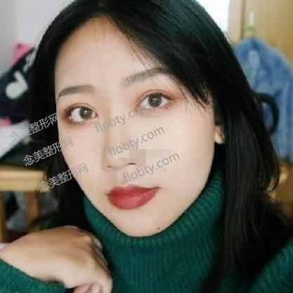梅州曙光医疗美容整形医院双眼皮整形案例分享,线条自然流畅没有留疤