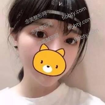 广州曙光医疗美容医院割双眼皮案例效果图展示,还有专家推荐