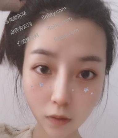 北京米扬丽格巫文云医生隆鼻+面部吸脂案例展示,术后效果不一般!