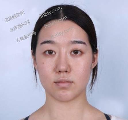 北京爱丽友整形医院双眼皮怎么样?手术效果真实反馈