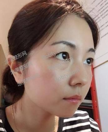 广州后勤医院激光美容科祛斑案例分享_附手术前后对比图