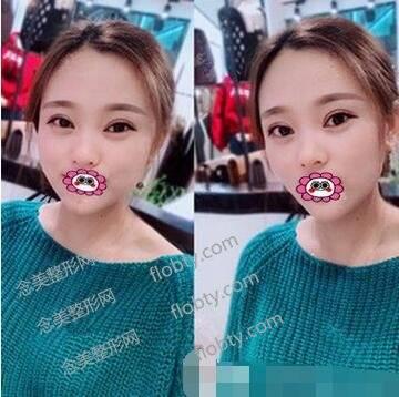 济南市第一人民医院医疗美容科双眼皮案例效果对比图分享