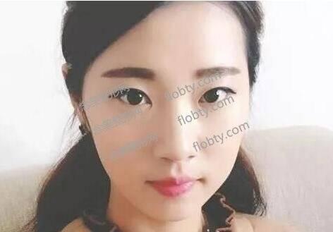 唐山星范整形医院双眼皮整形案例分享,线条流畅不留疤