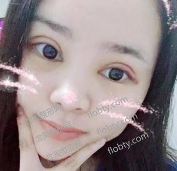 上海华美杨亚益医生双眼皮风格怎么样?术后效果展示