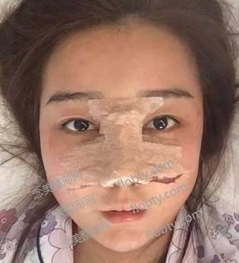 浙医二院整形双眼皮效果怎么样?术后两个月记录!