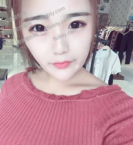 长沙逸韩医疗美容医院双眼皮真人案例效果图反馈,不仅有神而且还很自然