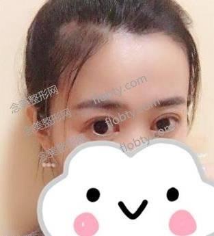 上海九院整形科双眼皮案例展示:术后即可效果及恢复过程分享!