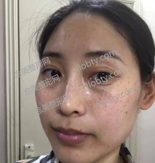 廊坊艾美皮肤激光整形祛斑好吗?术后恢复效果经验分享